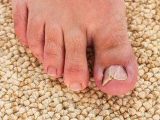 kaputter Fußnagel