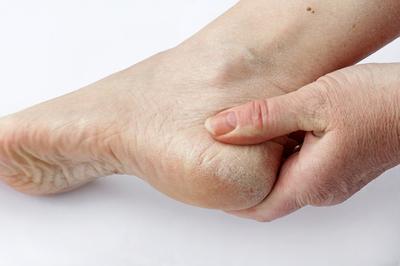 Eine Frau hat trockene Haut und Hornhaut an den Füßen